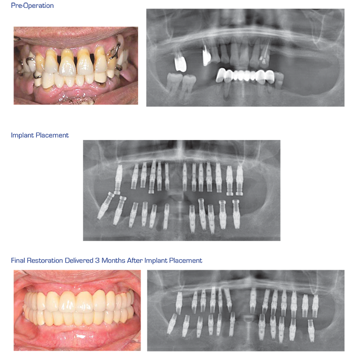 Case section 1