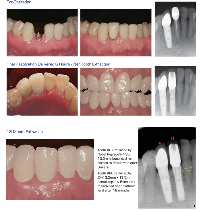 Case section 2